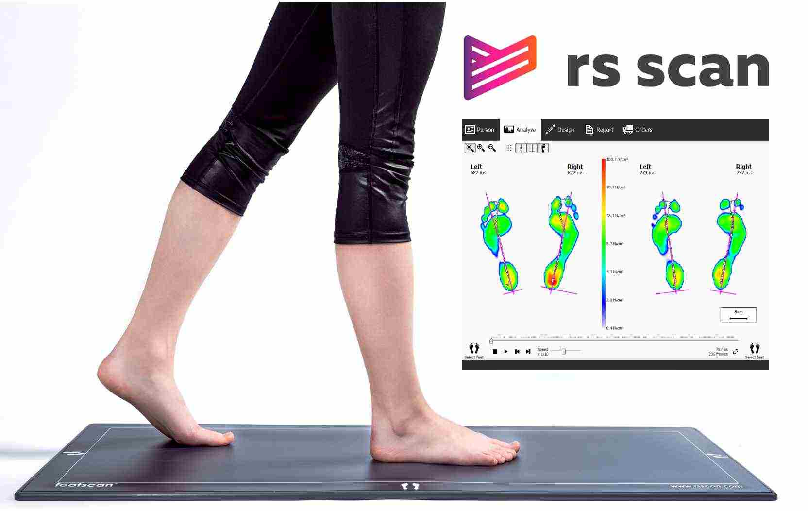 footscan analysis
