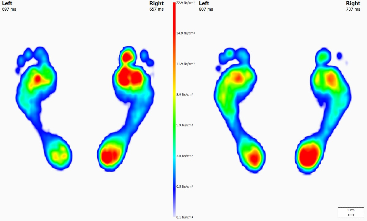 Footscan gait analysis scans